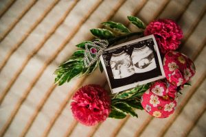 What-Is-Obstetric-Ultrasound-Imaging