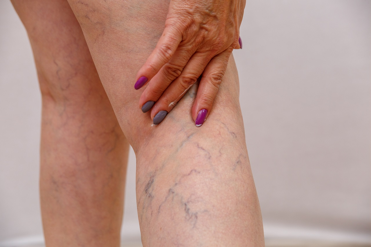 An elderly woman's legs with varicose veins