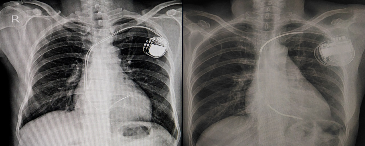 X-ray revealing placement of permanent pacemaker