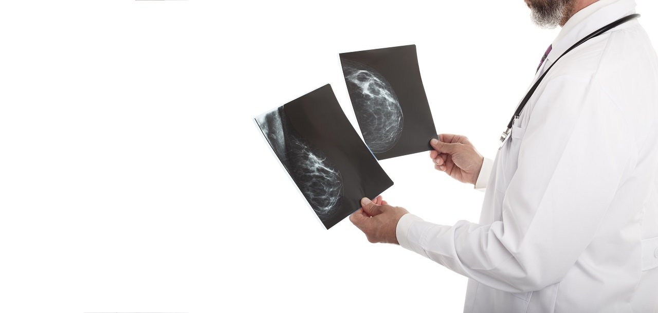 A doctor looking at mammographs