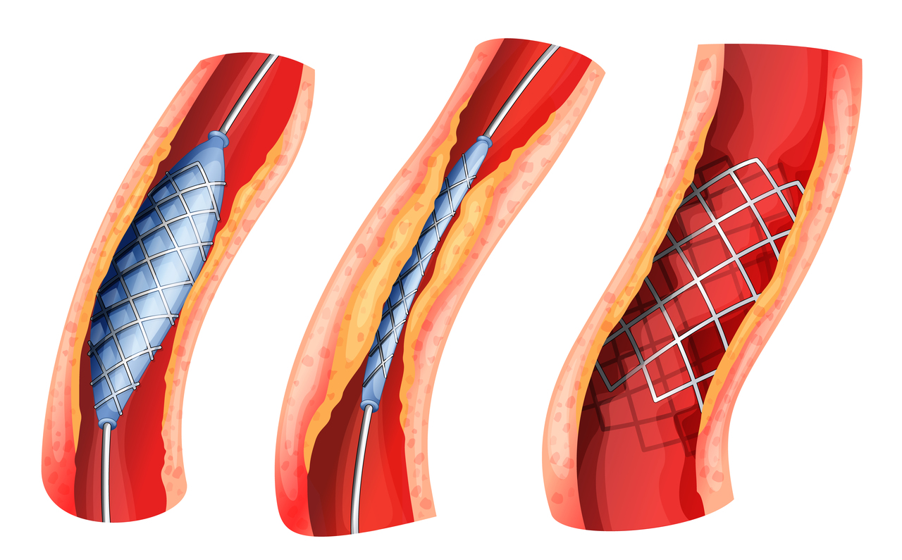Graphics of a stent placement in an artery