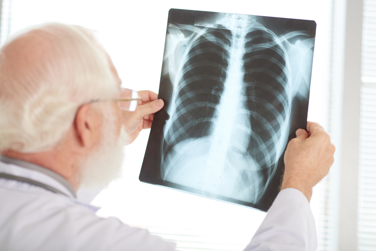 A doctor looking at a chest x-ray of pneumonia patient