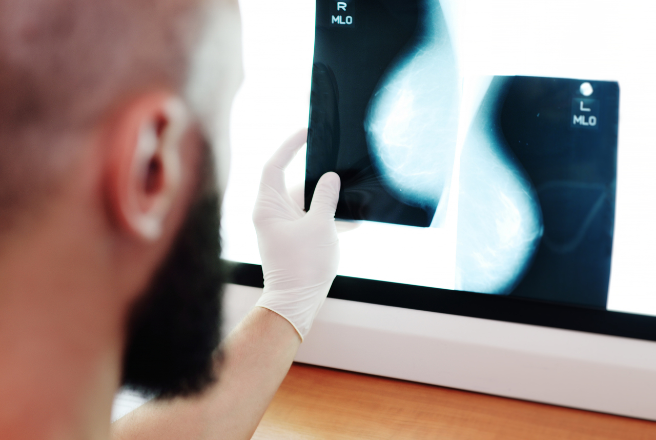 A doctor looking at the x-ray from a mammogram