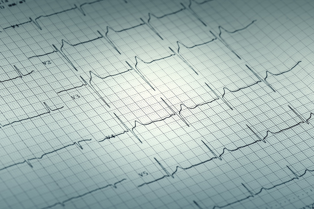 A graph of a person's heartbeat