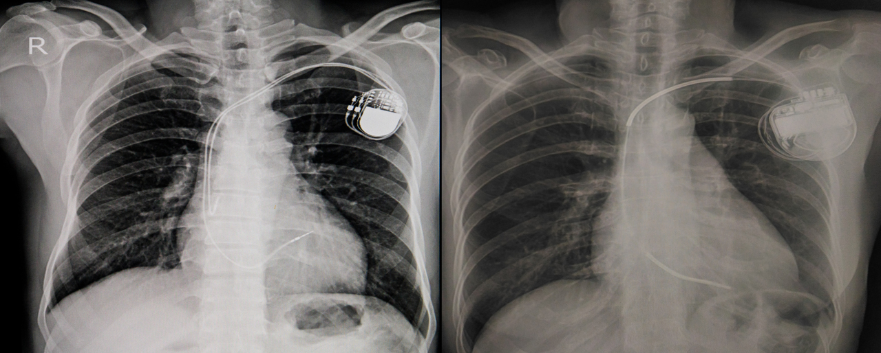 X-Ray of a person with a permanent pacemaker insertion